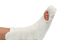 Motor Vehicle Accident Associated Pain